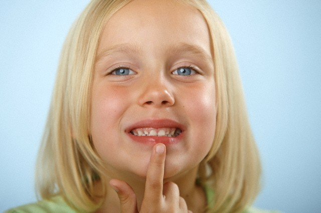 Почему у ребенка обветриваются губы