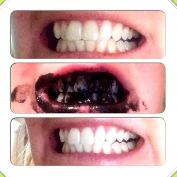 Отбелить зубы за неделю в домашних условиях - Shmorl.RU