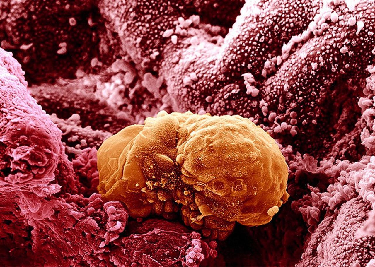 Сперма желтыми сгустками 17 фотография