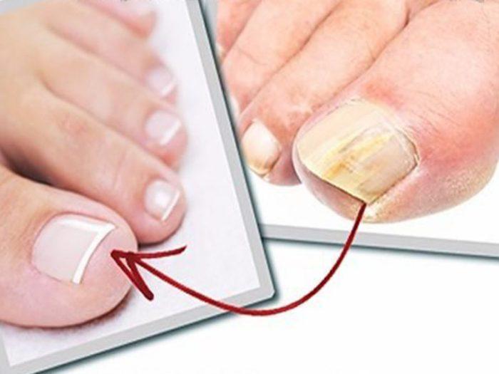Как быстро избавиться от грибка ног и ногтей
