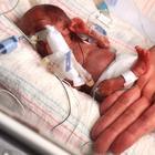 Эмилия, самый крошечный выживший младенец в мире