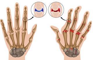 7 средств, которые успокоят симптомы артрита