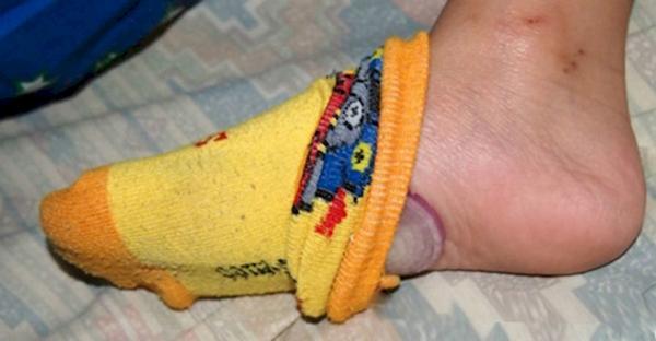 Температура спадет, если положить лук в носочки.