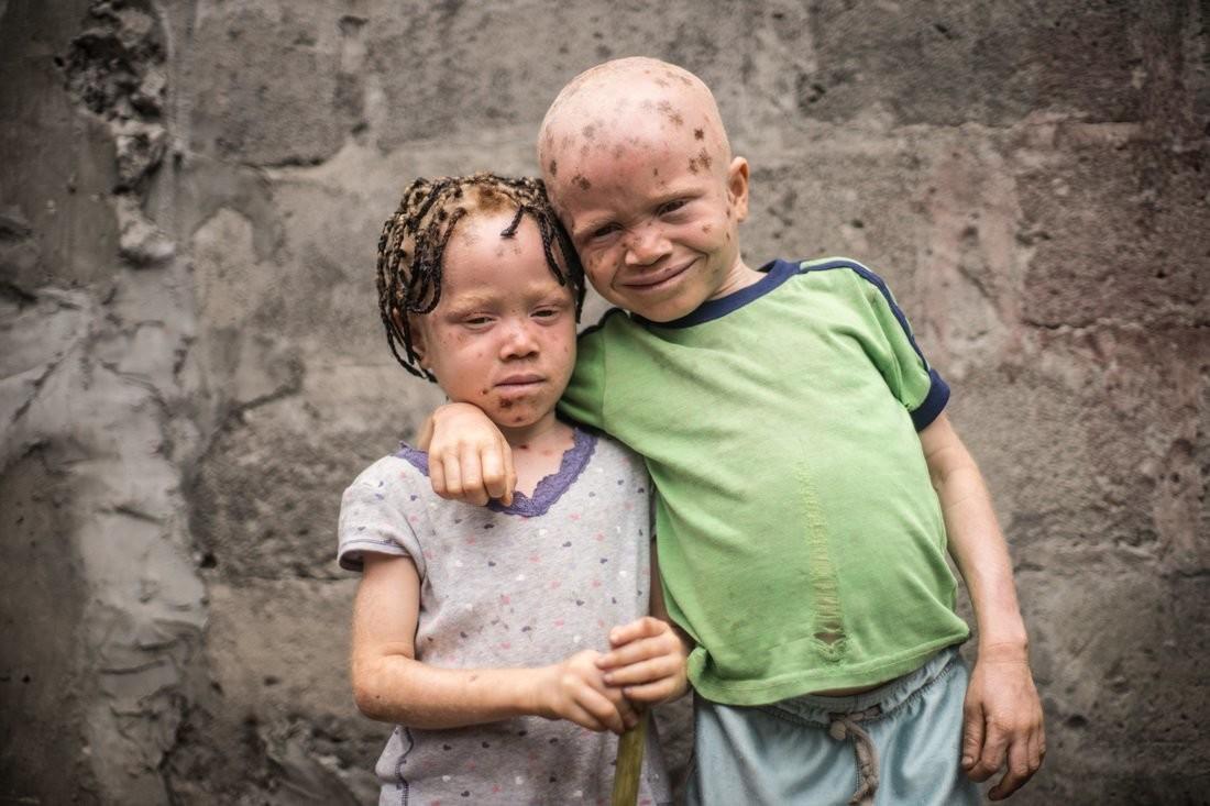 фото альбиносов африканцев картинку