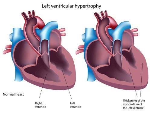 Гипертония миокарда левого желудочка