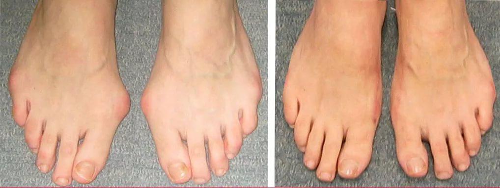 Удаление косточки на большом пальце ноги операция