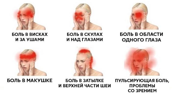 Пульсирующая боль в затылке