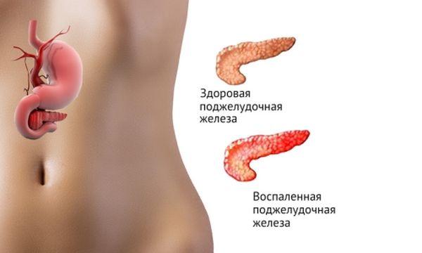 Здоровая и воспаленная поджелудочная