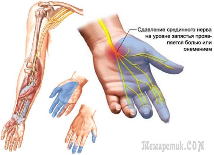 Лечение запястного суставов народными методами воспалительные заболевания суставов alezan