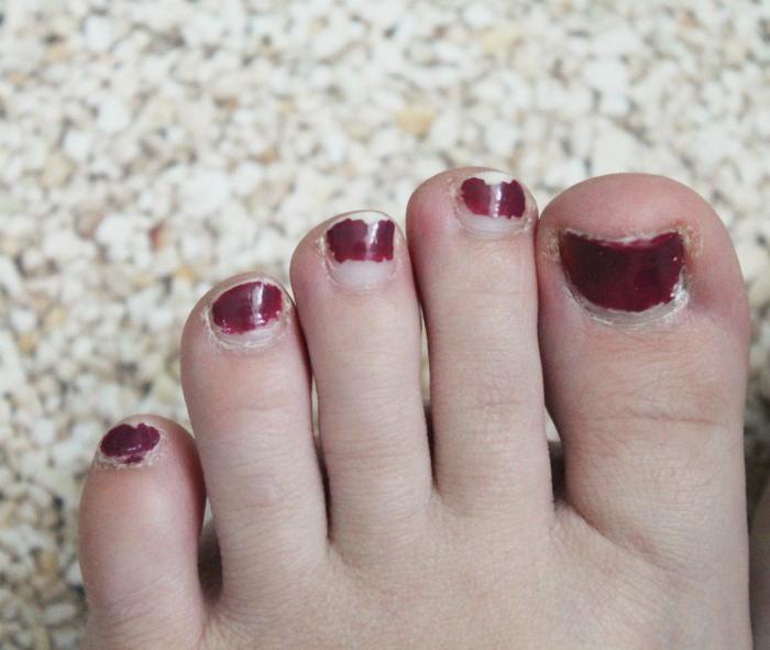 Неухоженные пальцы ног. | Фото: IRecommend.