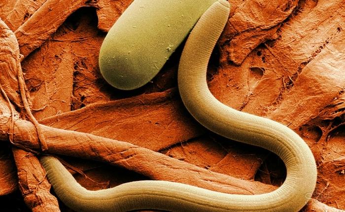 Противопоказания при очищении организма от паразитов