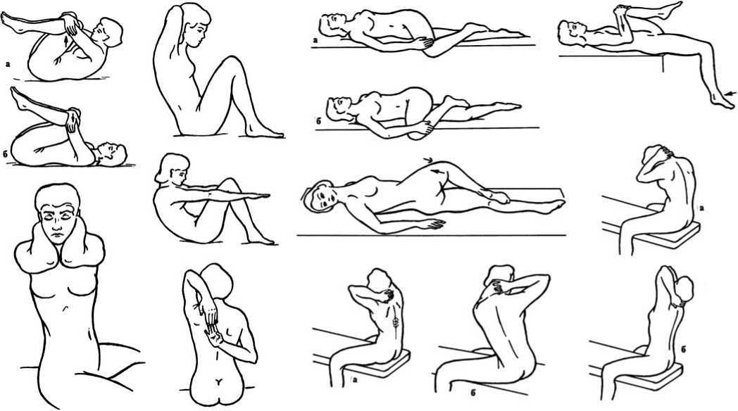 Гимнастика при ишиасе с картинками