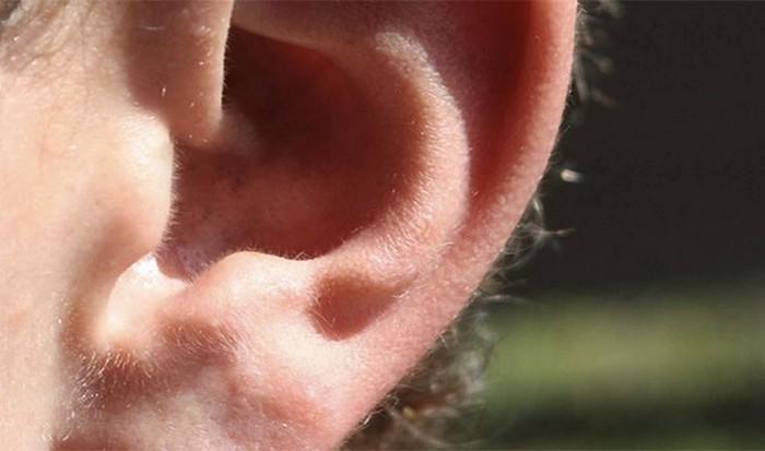 А что у вас с ушами?