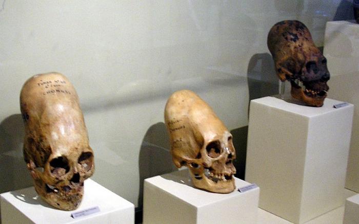 Деформация ради красоты: черепа полуострова Паракас. / Фото: listverse.com