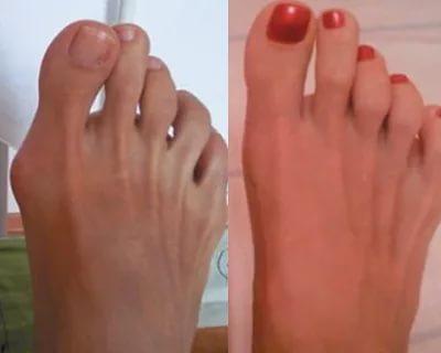 Косточки на больших пальцах ног - эффективные методы лечения