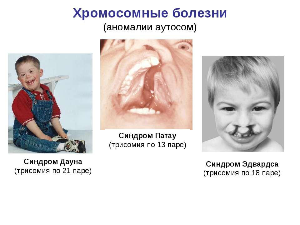 Хромосомные болезни синдром дауна реферат 7982