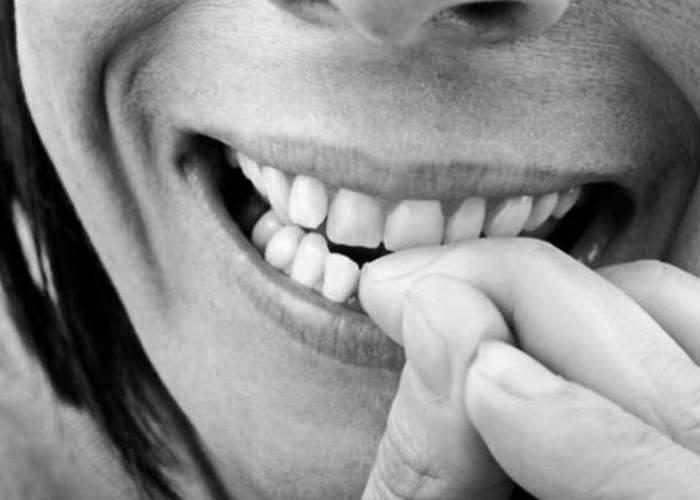 Безумный эксперимент: терапия против привычки грызть ногти.
