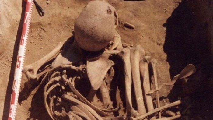 Останки самого древнего онкологического больного.