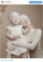 Сестры-альбиносы из Казахстана стали звездами соцсетей
