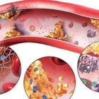 Очищение сосудов от тромбов и холестериновых бляшек природными методами