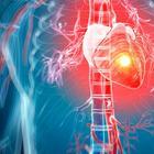 Симптомы «тихого» инфаркта