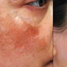 Натуральные средства для борьбы с тёмными пятнами на коже