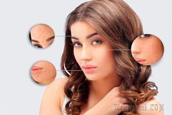 8 beauty-ошибок, виновных в появлении высыпаний