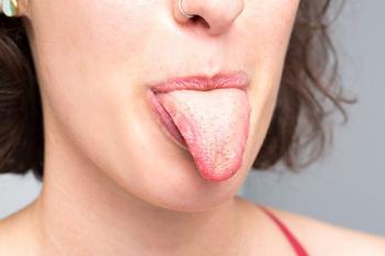 Желтый налет на языке: причины, лечение