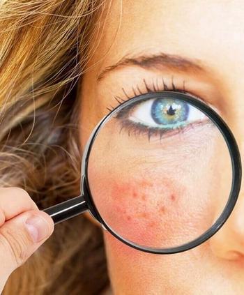 Причины появления зудящей сыпи на теле и 10 способов избавления от нее