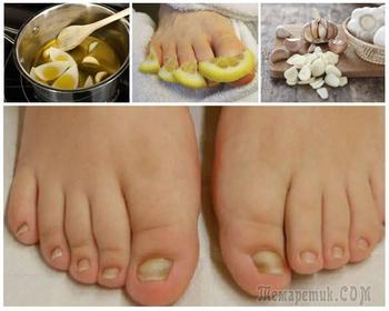 Грибок ногтей на ногах: причины, симптомы и способы лечения
