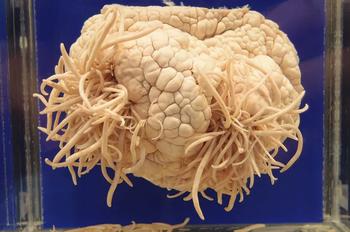 Паразит, который всем деликатесам предпочитает человеческий мозг