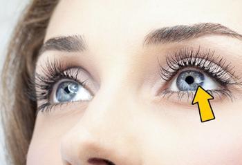 12 вещей, которые глаза могут рассказать о вашем здоровье