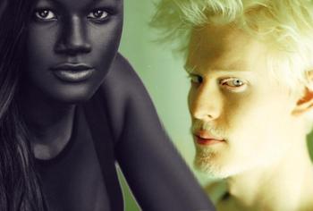 Поразительно! У этих 8 человек самый уникальный цвет кожи
