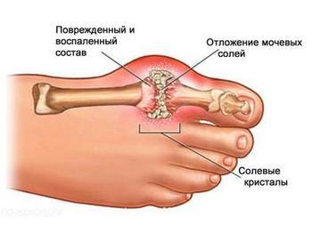 Как устранить боль при подагре