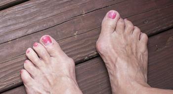 Народные средства от боли в косточке большого пальца