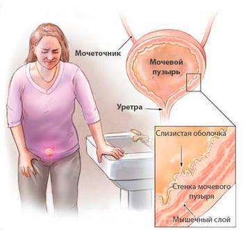 Доктор Евдокименко: Как вылечить цистит за 1 день – без таблеток и антибиотиков