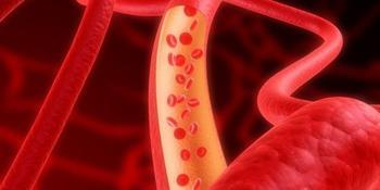 Народные средства для лечения атеросклероза сосудов