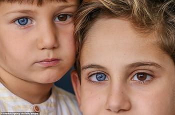 Разноцветные гены: братья из Турции с редкой гетерохромией завораживают с первого взгляда