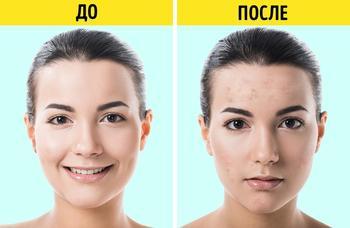 7 косметических продуктов, которыми не советуют пользоваться дерматологи