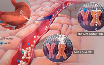 Кора осины при сахарном диабете