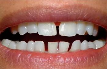 Редкие зубы: причины, методы лечения