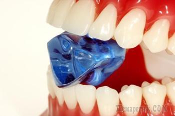Причины появления и вред зубного камня для человека