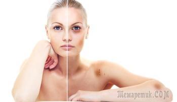 Быстро и просто: убираем синяки на лице и теле