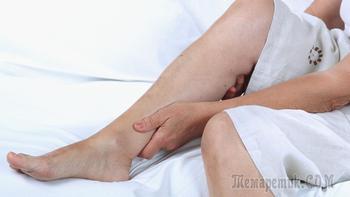 Тромбоз поверхностных вен нижних конечностей