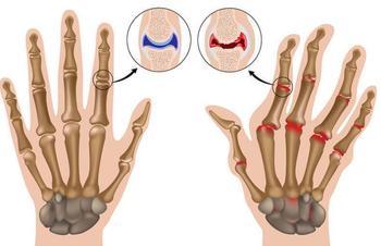 Средства, которые помогут успокоить симптомы артрита