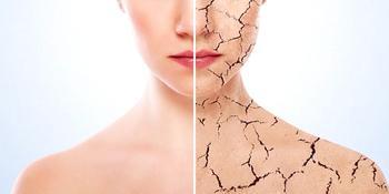 Новый тренд здорового питания для чистой кожи - диета Пегано