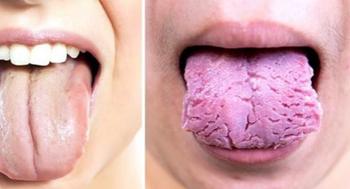 Что ваш язык пытается рассказать о вашем здоровье