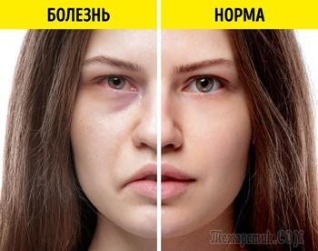 Какие признаки проблем со здоровьем чаще всего написаны на лице