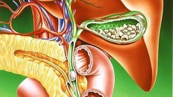 ТОП-9 натуральных средств для лечения желчнокаменной болезни