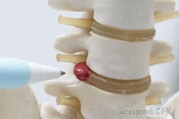 Симптомы и лечение грыжи межпозвоночного диска поясничного отдела